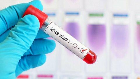 Sumqayıtda dövlət qurumunun 11 əməkdaşı koronavirusa yoluxdu, biri öldü
