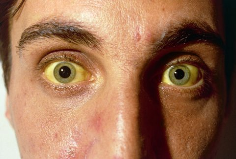 Hepatit ola biləcəyinizi göstərən 5 ƏLAMƏT