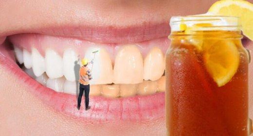 Saralan dişlərə qarşı nə etmək olar?